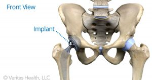 Is It Hip To Do Yoga After A Hip Replacement Shraddhaa